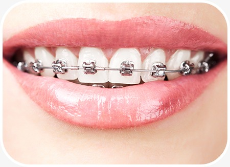 Dental Braces | North Main Family Dental | Family and General Dentist | Airdrie