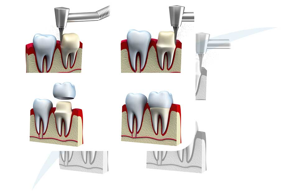 Dental Crowns | North Main Family Dental | Family and General Dentist | Airdrie